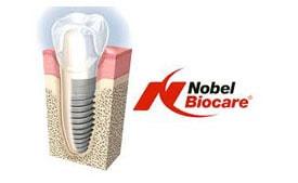 Nobel BiocareE-min