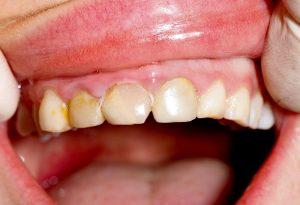 dantu nudilimas ir gydymas
