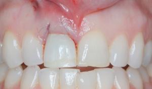laikini dantys po implantavimo