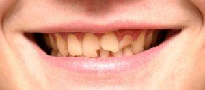 nuskilo dantis