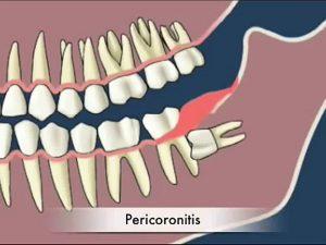 protiniu dantu salinimas