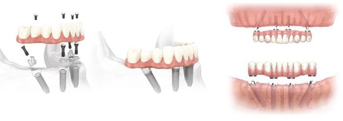 dantys ant 4 implantu