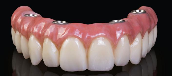 visi dantys ant keturiu implantu