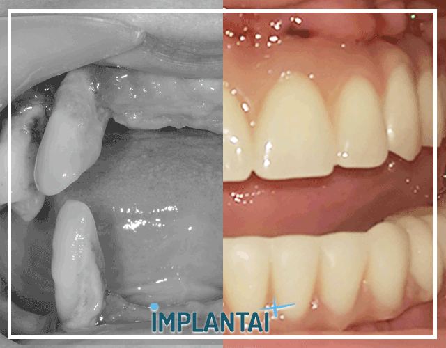 5-allon4 dantu implantacija