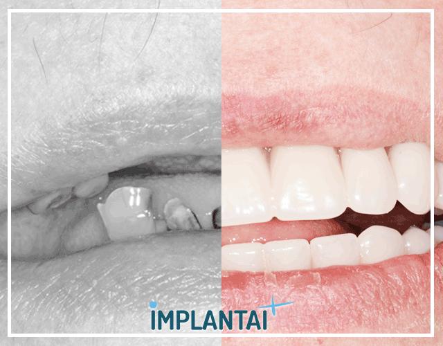 6-sekminga-dantu-implantacija