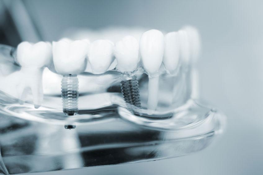 danties implantacija issimoketinai