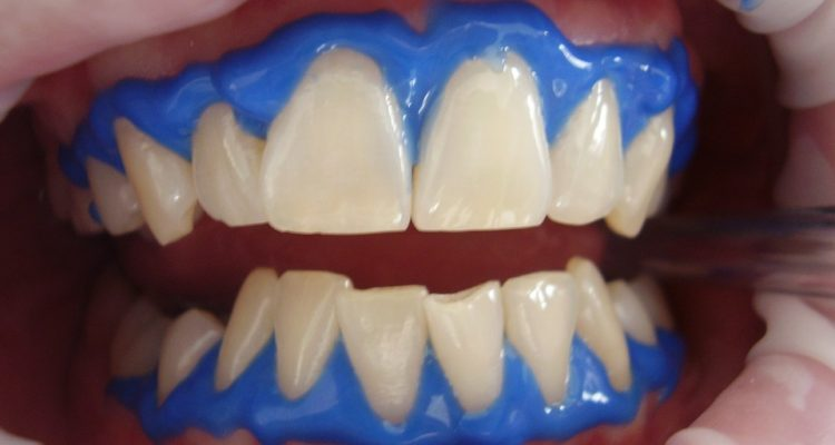 dantu balinimas