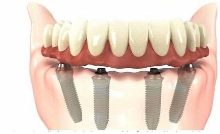 dantu implantai issimoketinai