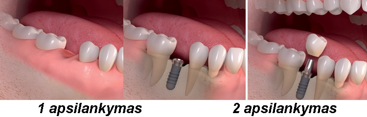 dantu implantai per viena diena