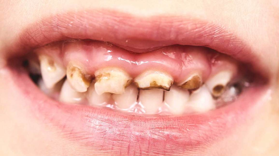 supuve dantys