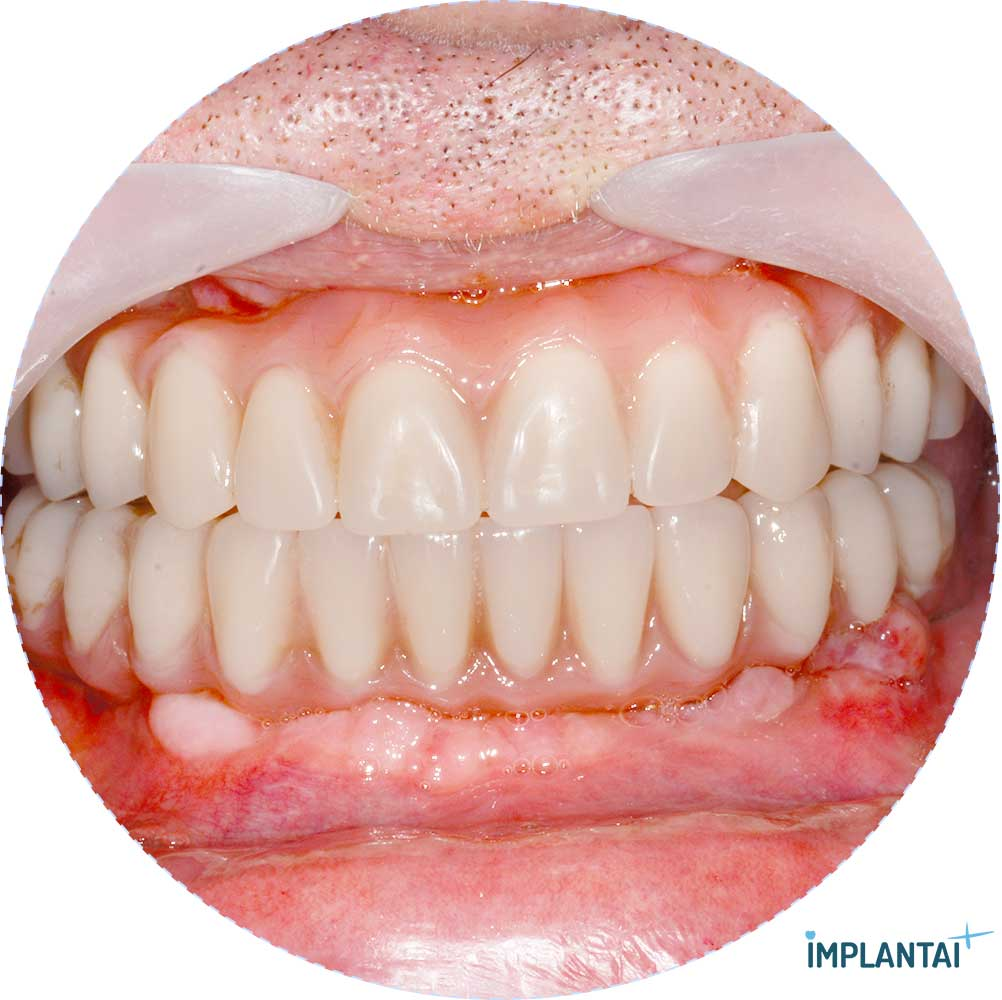 10-2 atvejis Implantaiplius.lt