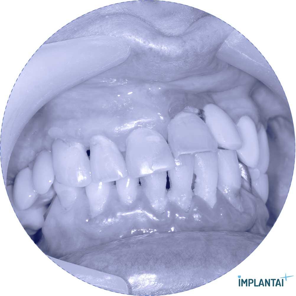 11-1 atvejis Implantaiplius.lt