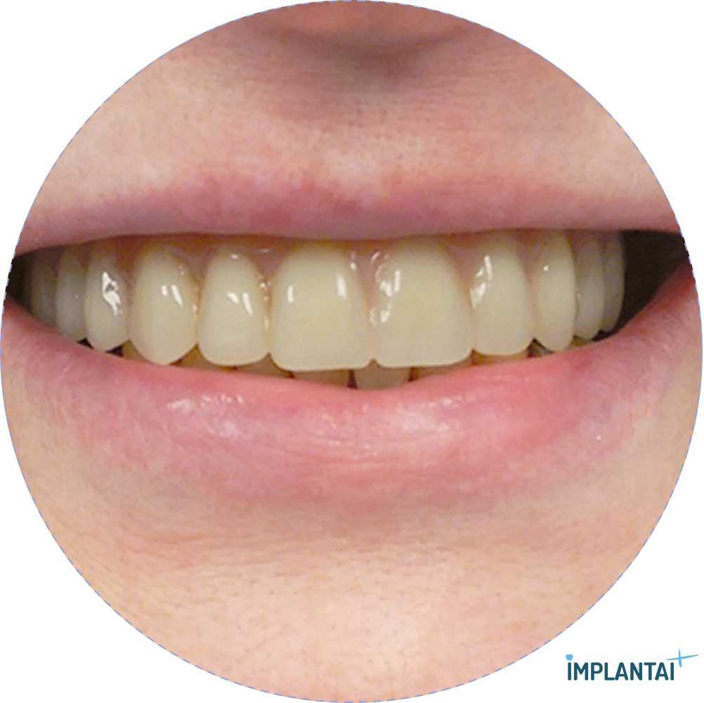 11-2 atvejis Implantaiplius.lt