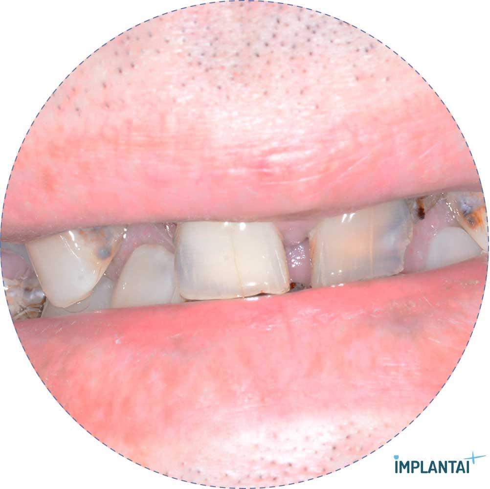 2-2 atvejis Implantaiplius.lt