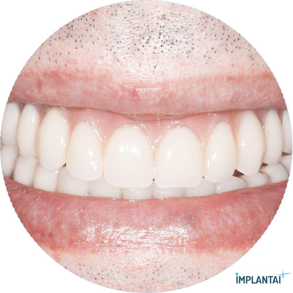 2-3 atvejis Implantaiplius.lt