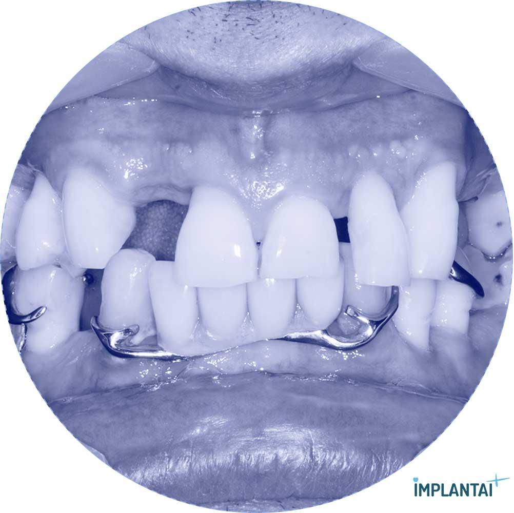 3-1 atvejis Implantaiplius.lt