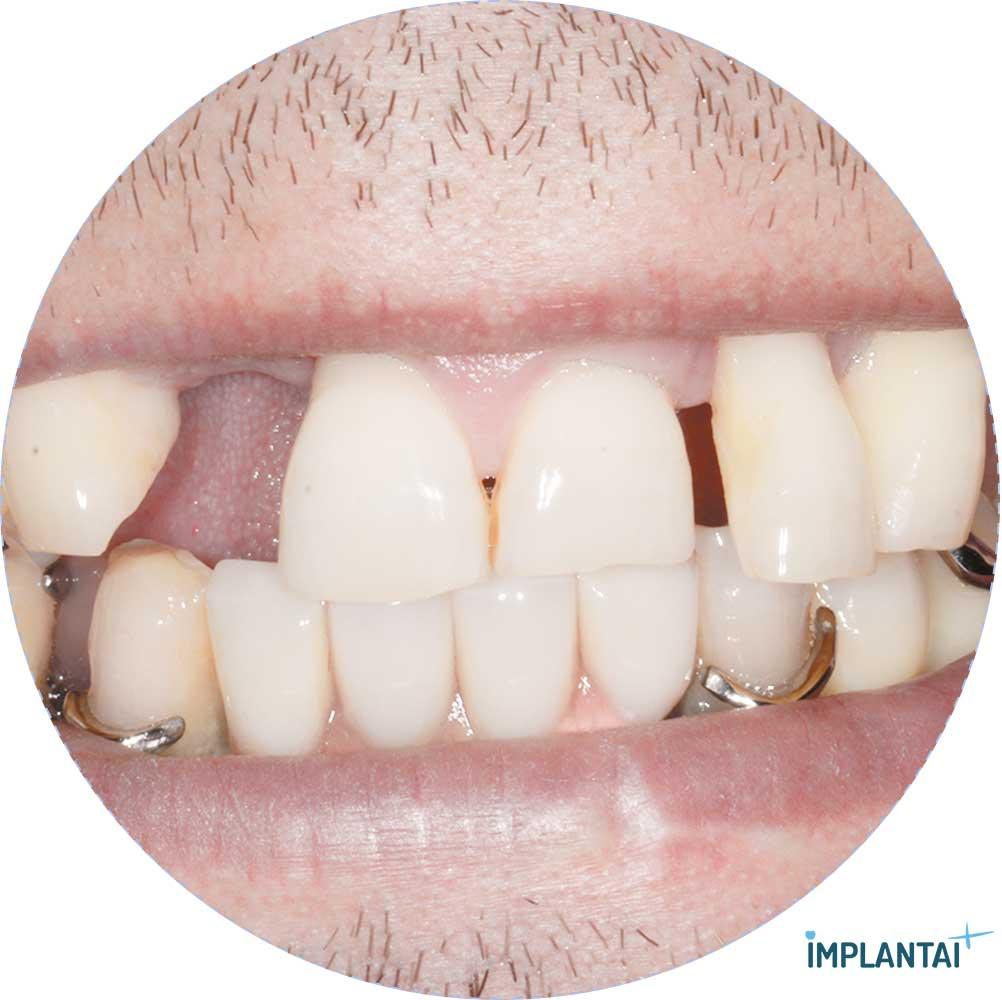 3-2 atvejis Implantaiplius.lt