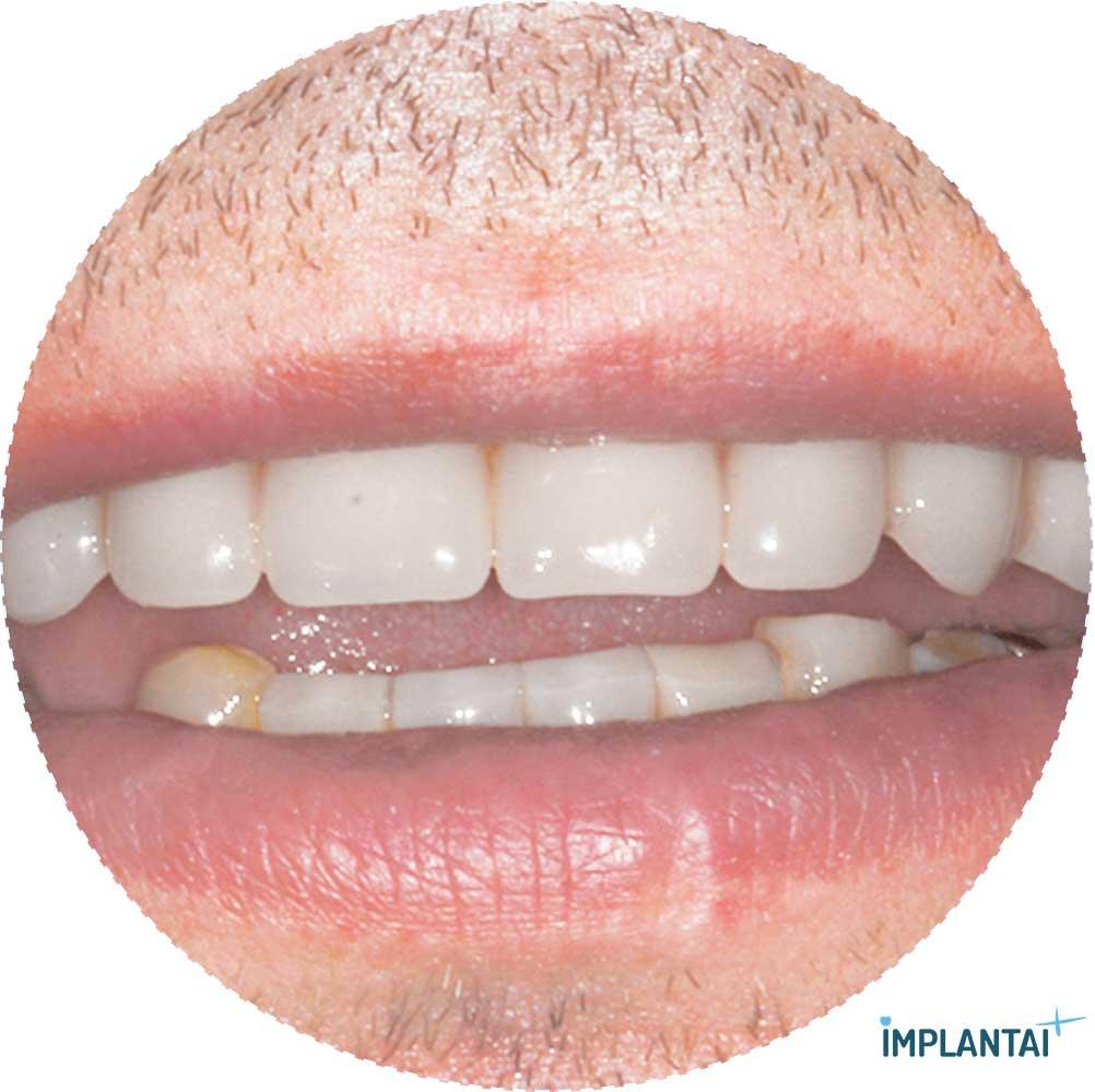 3-3 atvejis Implantaiplius.lt