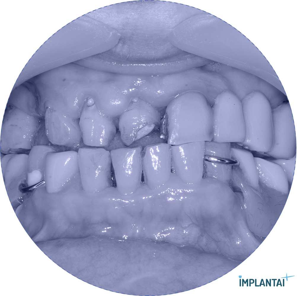 4-1 atvejis Implantaiplius.lt