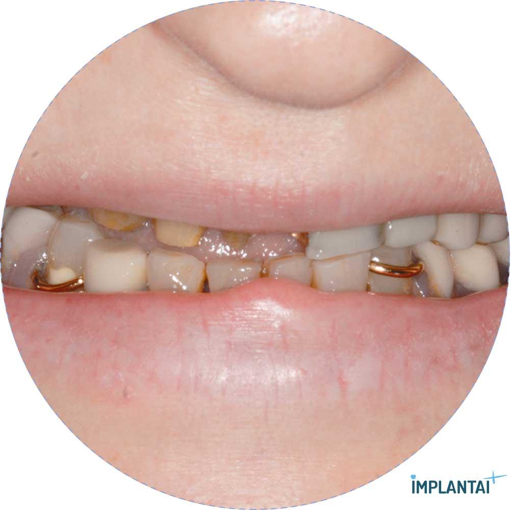 4-2 atvejis Implantaiplius.lt