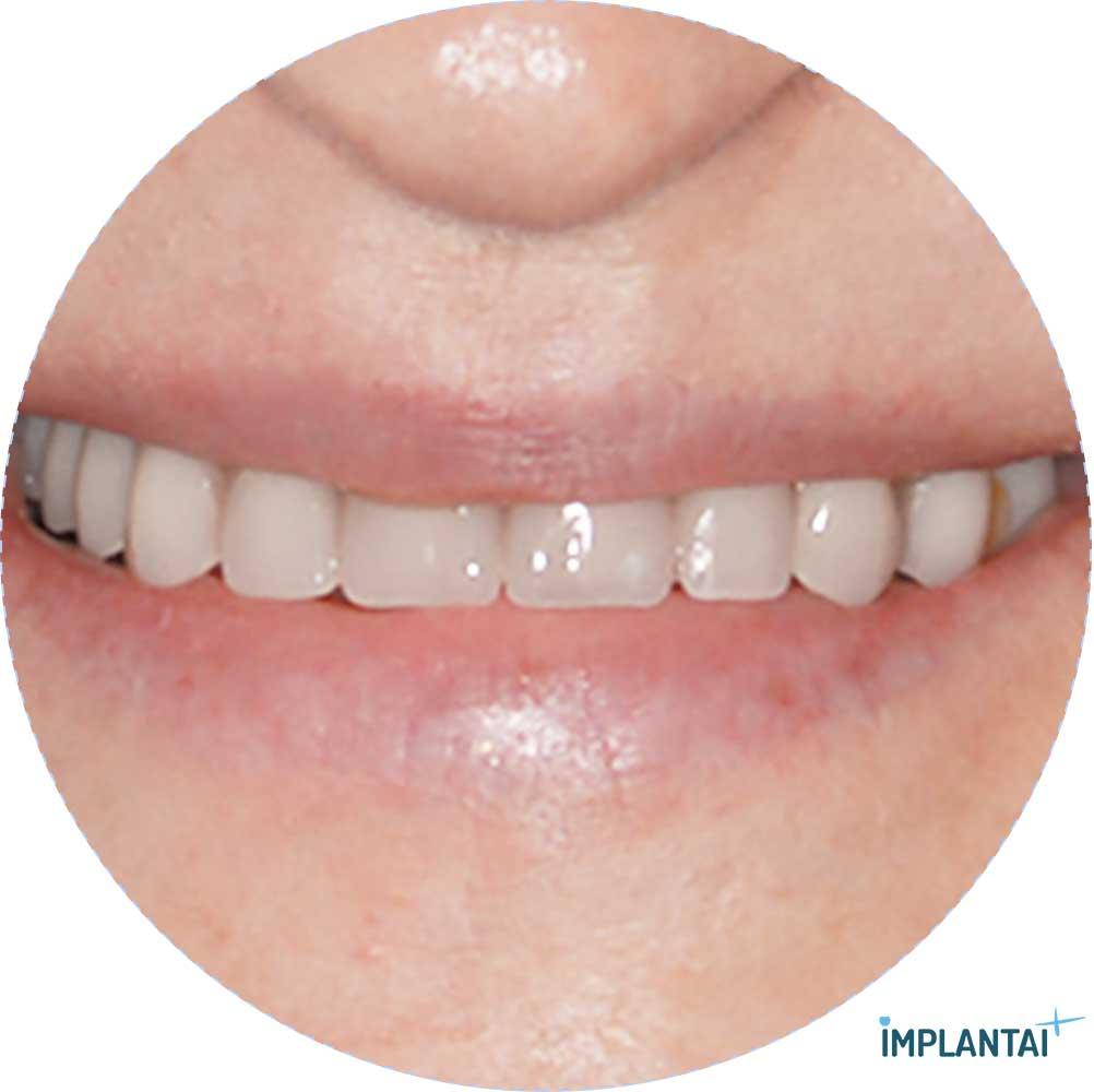 4-3 atvejis Implantaiplius.lt