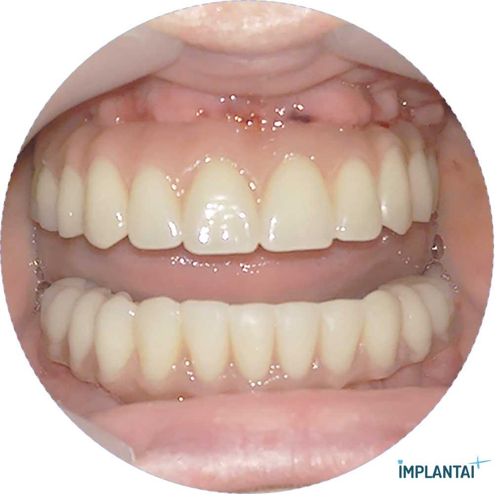 5-2 atvejis Implantaiplius.lt