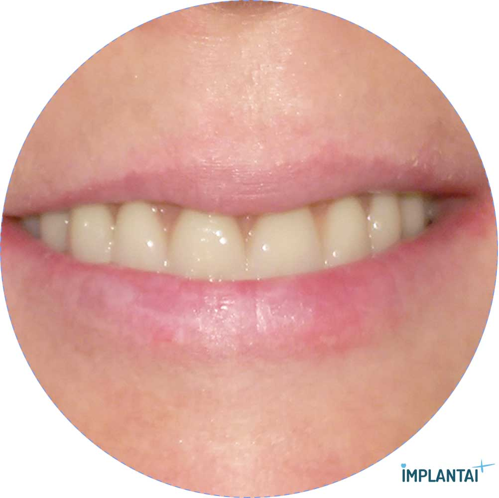 5-3 atvejis Implantaiplius.lt