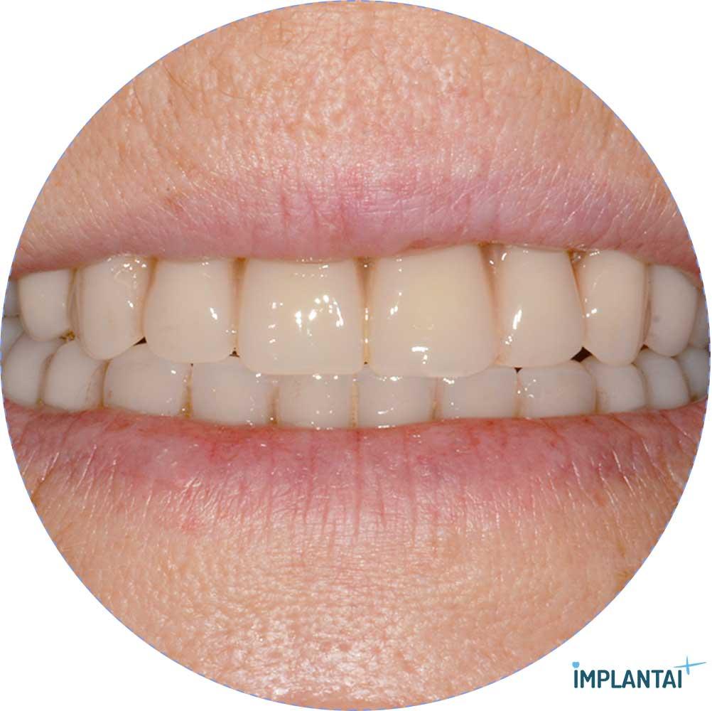 6-2 atvejis Implantaiplius.lt