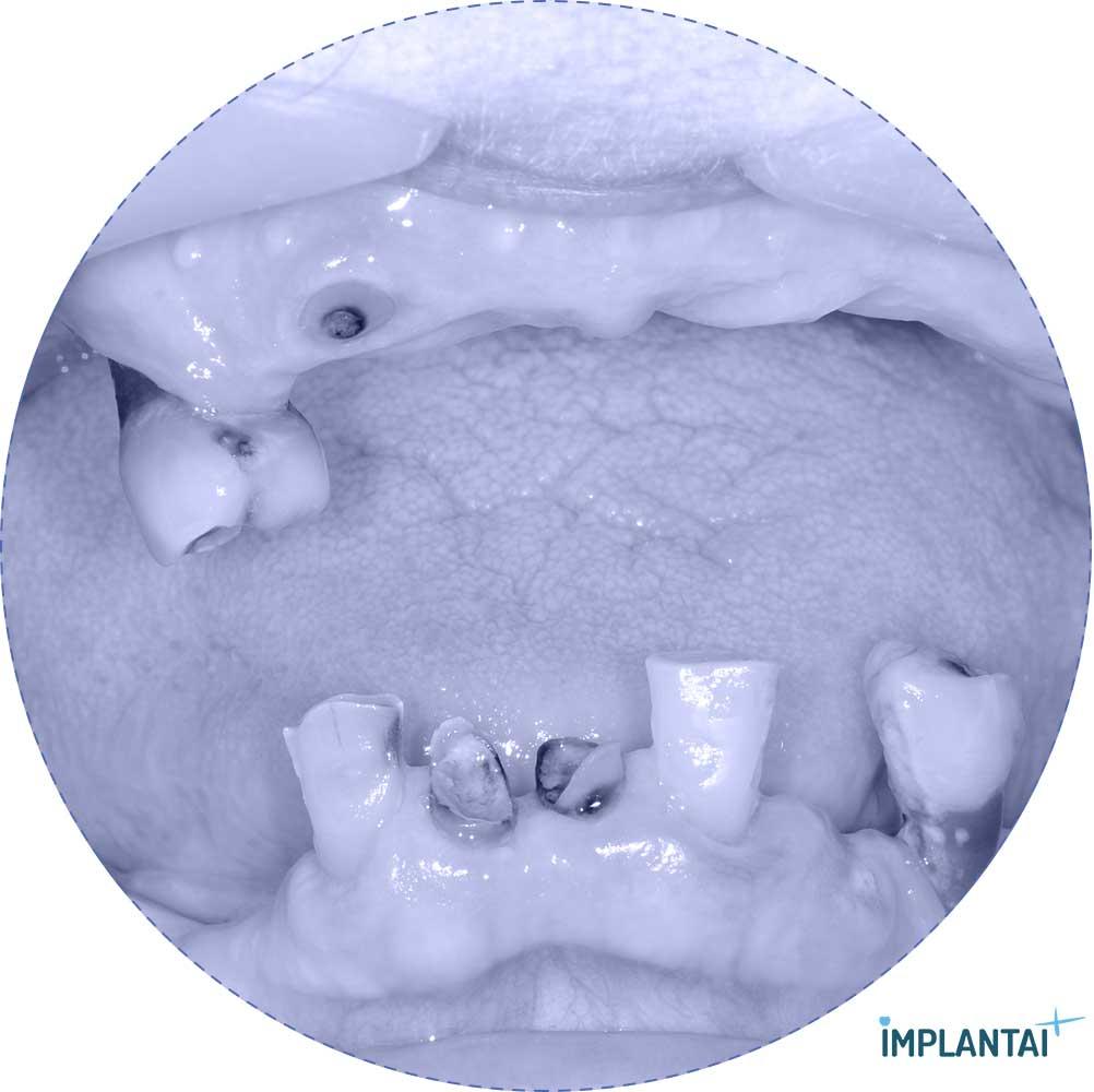 7-1 atvejis Implantaiplius.lt