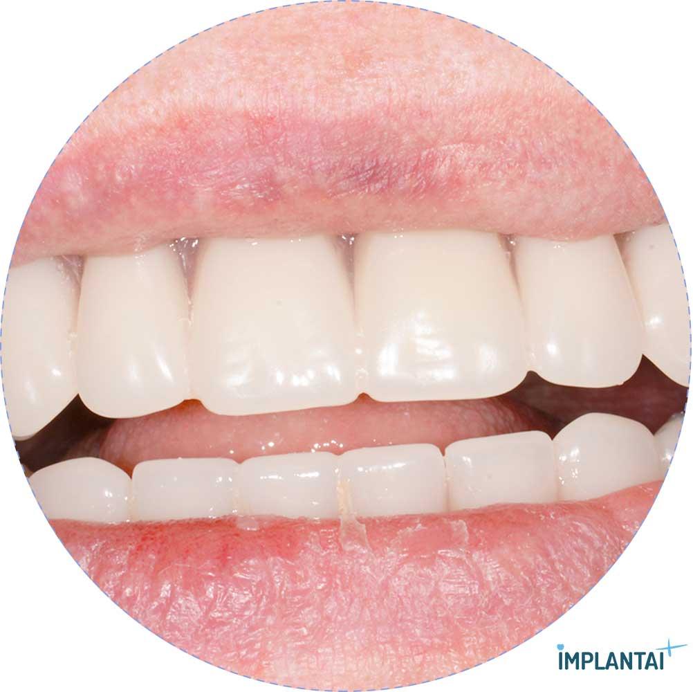 7-2 atvejis Implantaiplius.lt