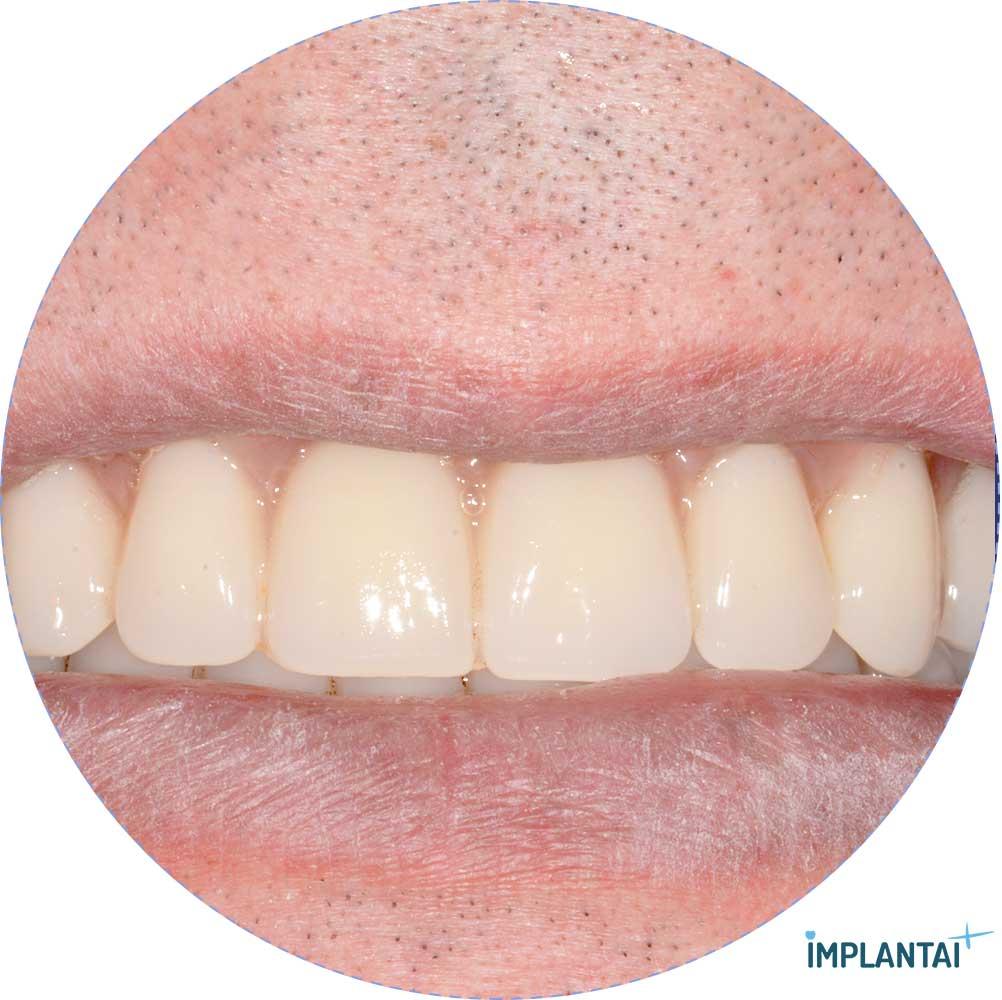 8-2 atvejis Implantaiplius.lt