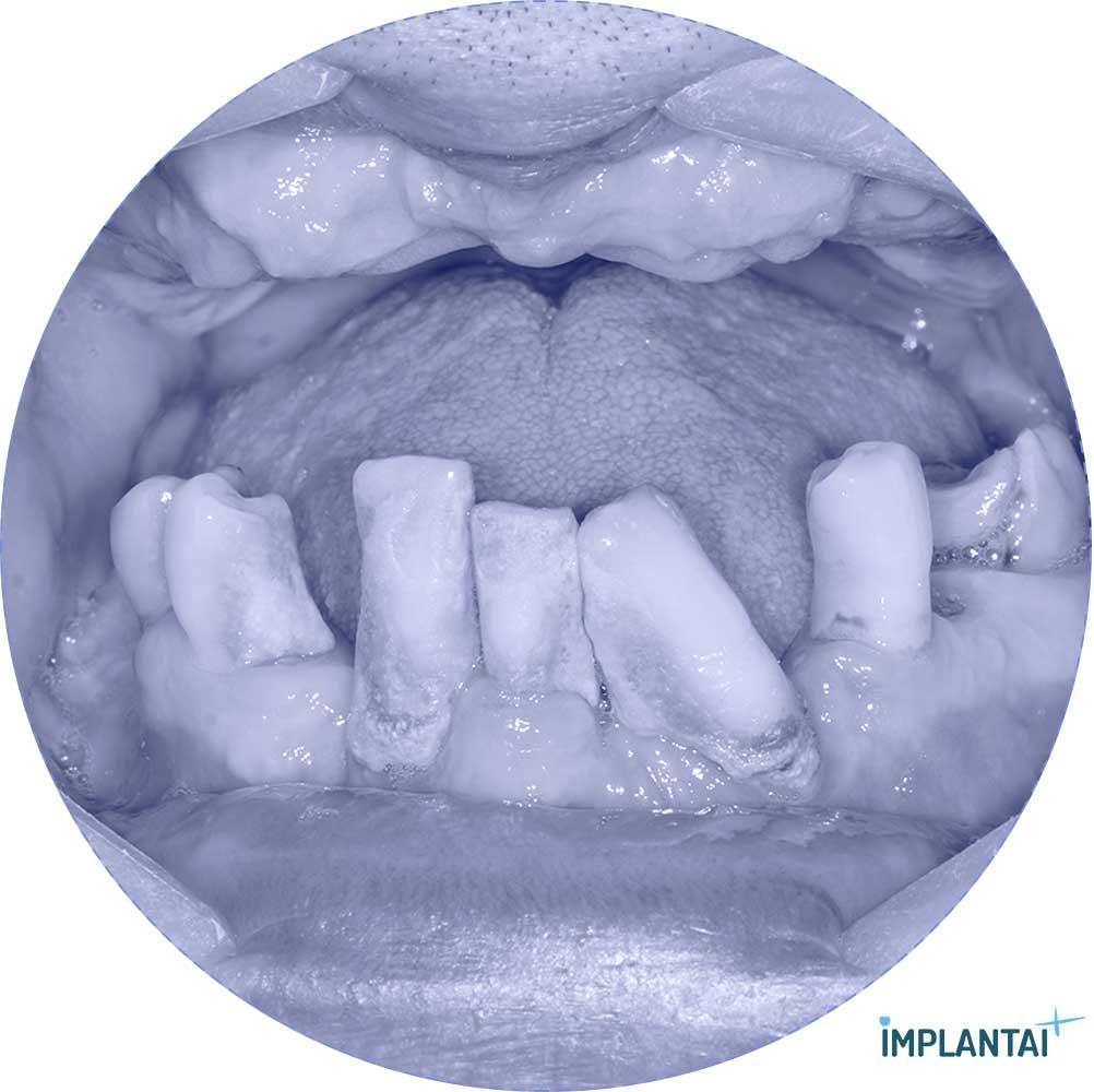 9-1 atvejis Implantaiplius.lt