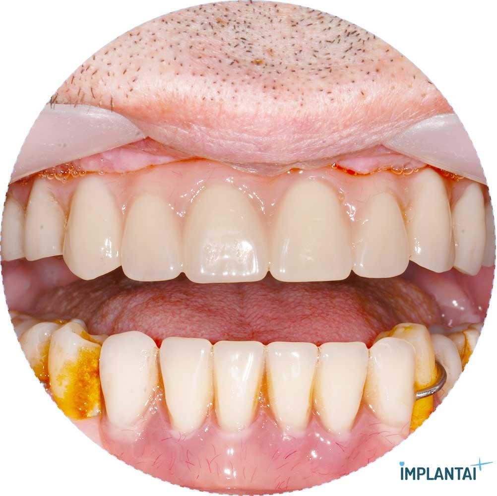 9-2 atvejis Implantaiplius.lt