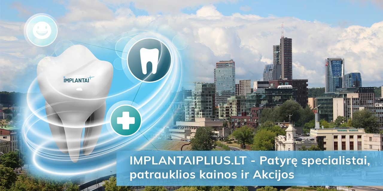 Dantų implantai Vilniuje