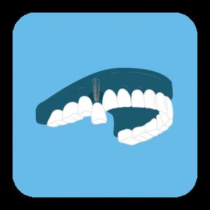 Dantų karūnėlė